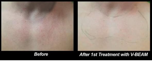 Before and after photos after patient's first treatment with the Vbeam laser treatment for Roseaca.