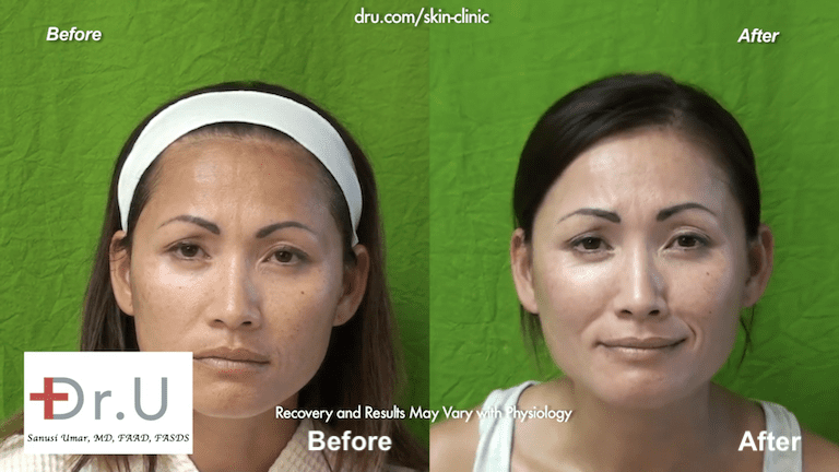 Beverly Hills patients laser skin resurfacing before and after results.