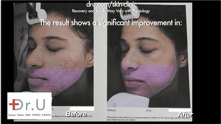 Using the Fraxel Dual can offer the best laser treatment for acne scars, particularly for ethnic patients. This is due to the ability of the laser to target areas without overheating the surrounding skin.*