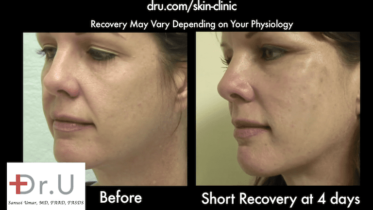 Nonsurgical facelift before and after photos show a firmer appearance in the patient's cheeks.