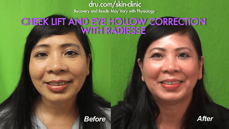 El Segundo, Los Angeles patient before and after the best non surgical cheek lift at Dr. U Skin Clinic.