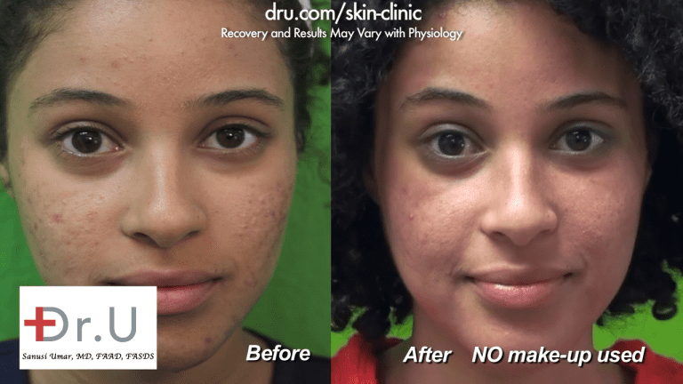 The patient is very happy with her results from Dr. U Skin Clinic after her Fraxel Dual laser treatment for acne scars.