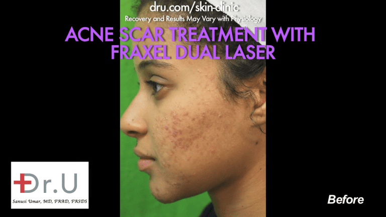 Santa Monica patient struggled with acne in college and was resigned with it. She had tried over the counter medication, which did not work, so she followed up with Dr. U for laser treatment for acne scars.