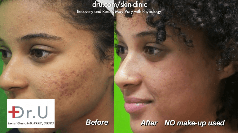 The patient from Los Angeles is able to feel comfortable in her own skin without the use of makeup to cover her acne scars. For many people who struggle with acne scarring, this feeling far outweighs laser treatment for acne scars cost.