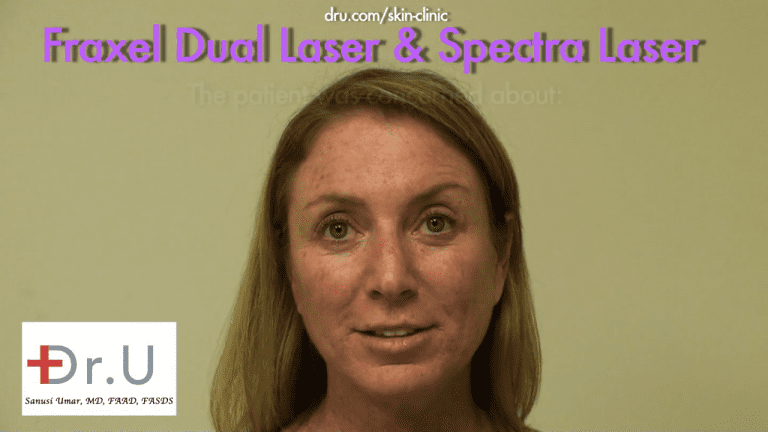 This patient from El Segundo, Los Angeles consulted Dr. U about age spots on face and neck areas. The appearance of the brown dots concerned her.