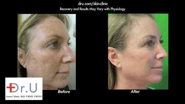 Profile view showing the other side of the patient's face after undergoing the best age spot remover treatment with Dr. U in Los Angeles.*