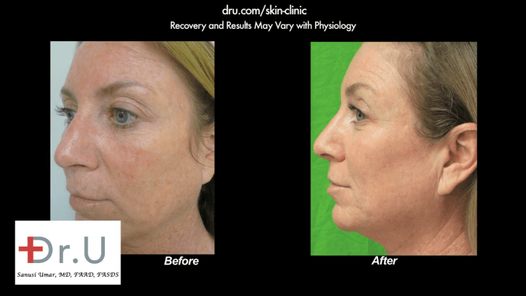 A profile view of the El Segundo, Los Angeles patient showing the results of removing age spots on face with laser therapy.