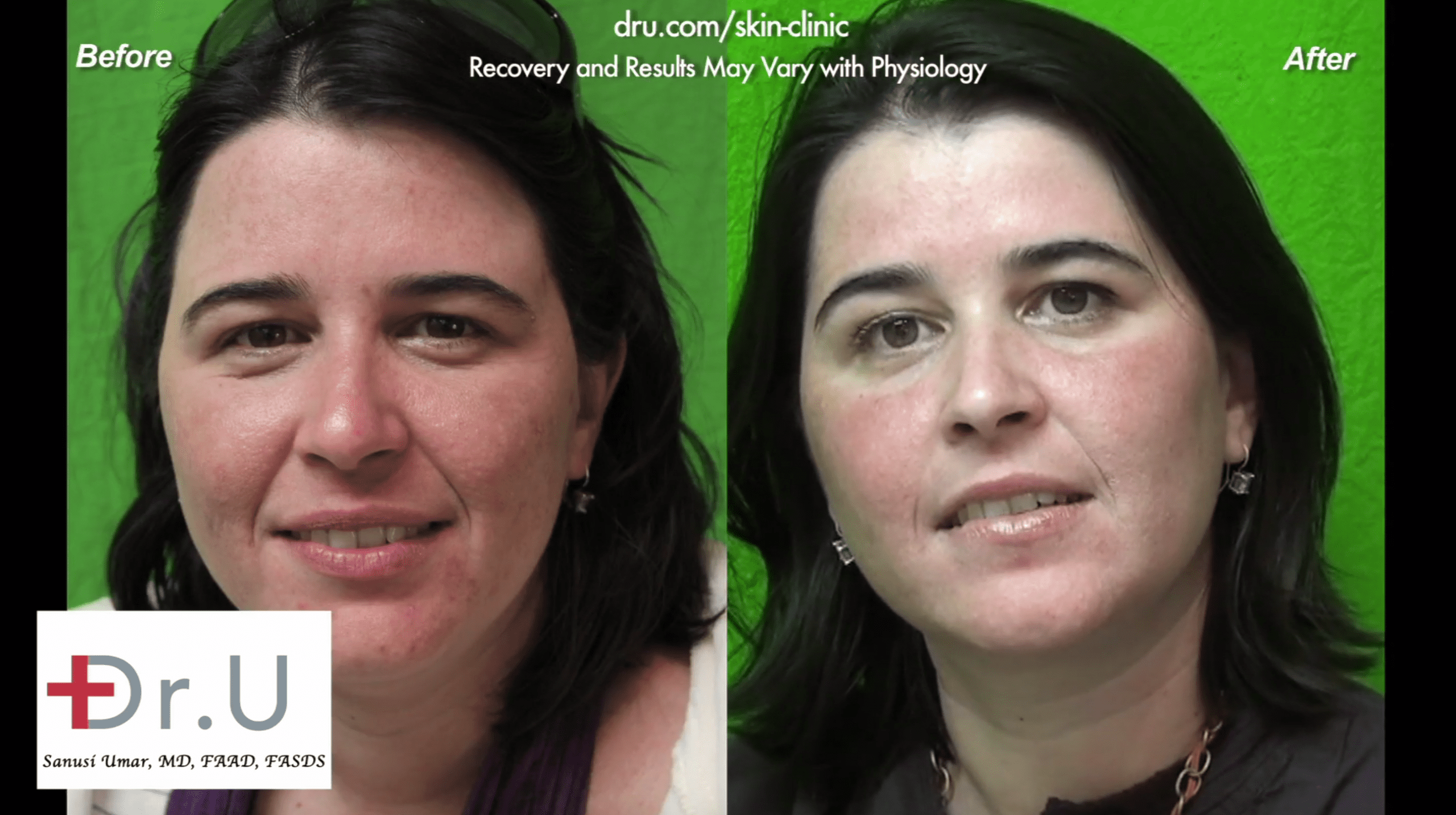 This patient found relief from adult acne at Dr. U Skin Clinic.*