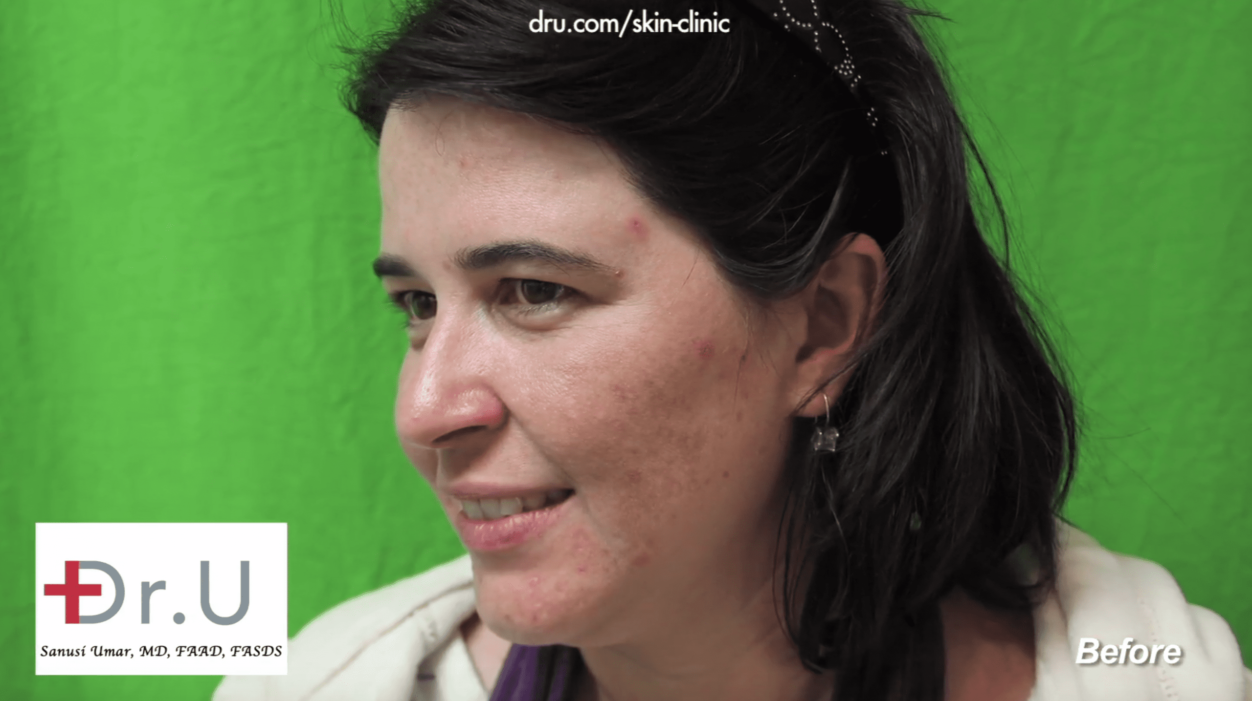 Unknown adult acne causes left this patient with broken skin before finding Dr. U Skin Clinic.