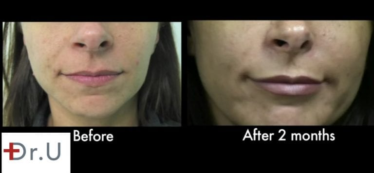 Patient is happy with her laugh line treatment results at two months.*