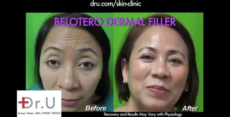 Dr. U's treatment with Belotero for forehead wrinkles helped this patient look her absolute best.