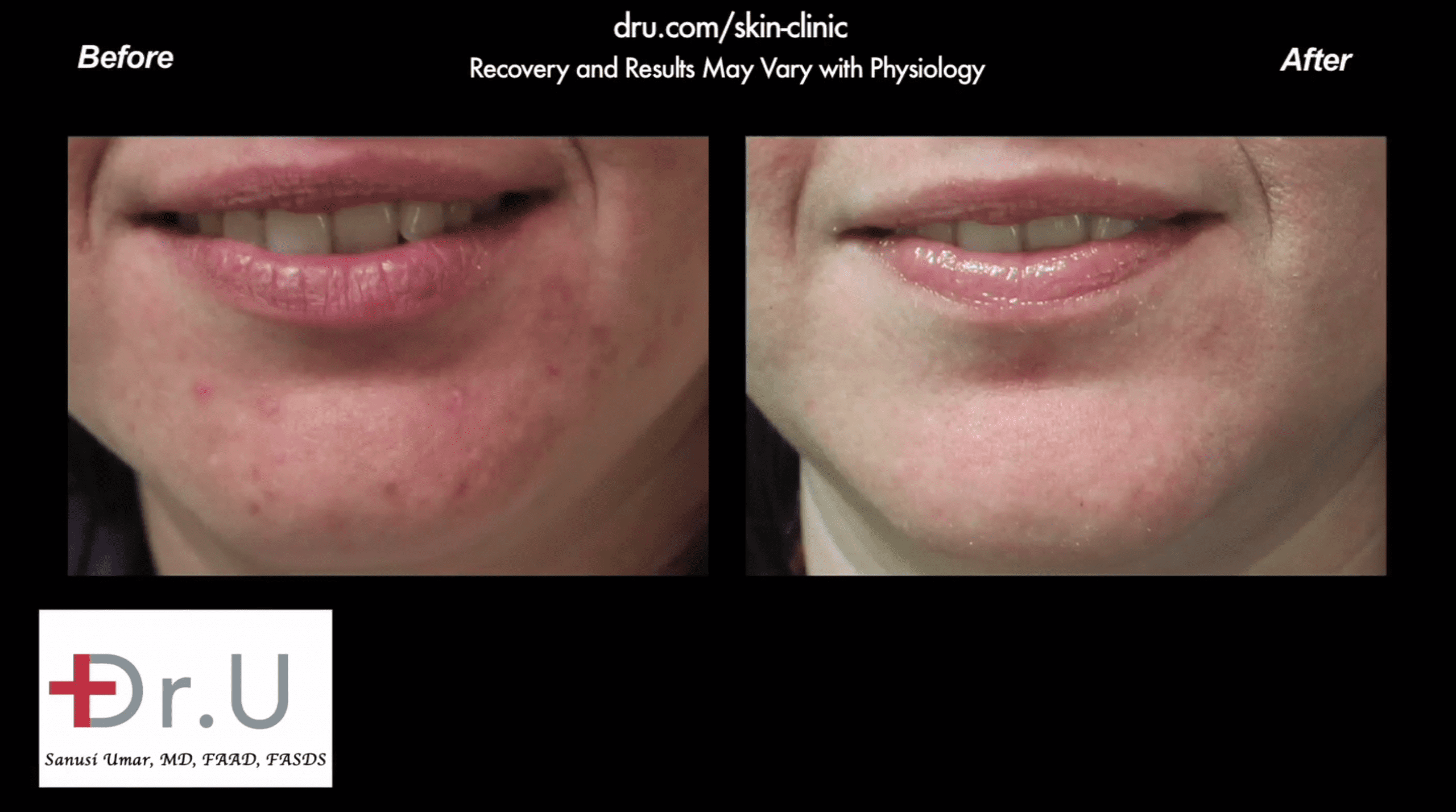 Before and after patient received one of the best acne treatment products for adults.