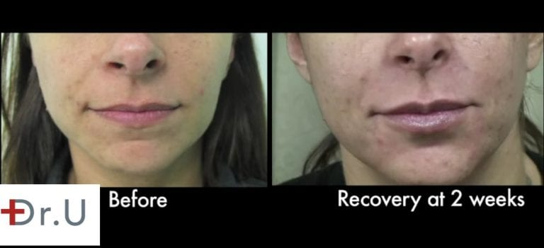 Close up view before and after Dr. U's laugh line filler treatment.*