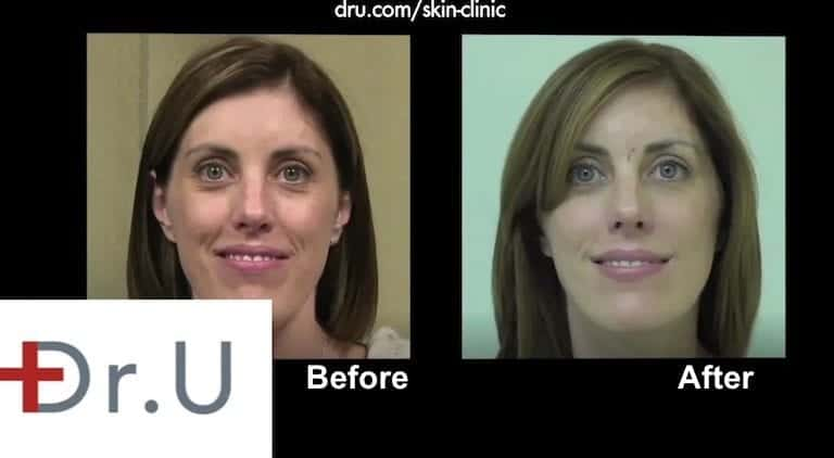 It is possible for hyaluronic acid fillers for laugh lines to soften and improve facial expressions.