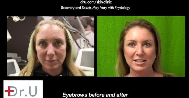 """Before and after Botox for eyebrow lift. The El Segundo, Los Angeles patient is happy and no longer wonders ,""""how long does Botox last on the crows feet area?*"""