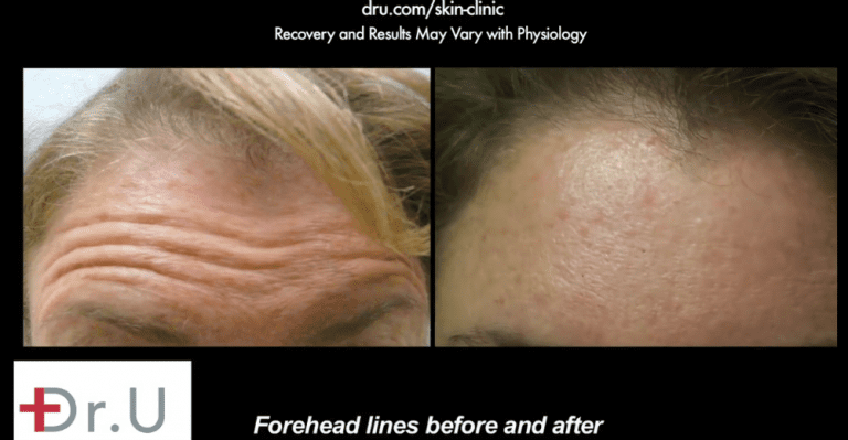 Botox helped El Segundo patient achieve a smoother forehead.