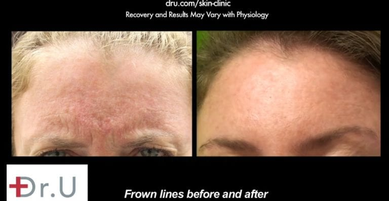 """Many patients wonder, """"is Botox safe for crows feet?"""". Your dermatologist can go over your concerns in an initial consultation. This patient was happy wih how Dr. U used Botox to rejuvenate the glabellar region by targeting the patient's frown line wrinkles.*"""
