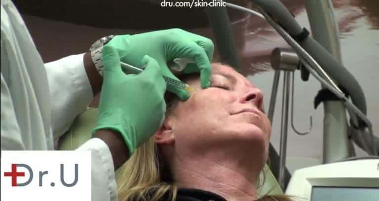 Dr. U injects Botox for crows feet around the eyes