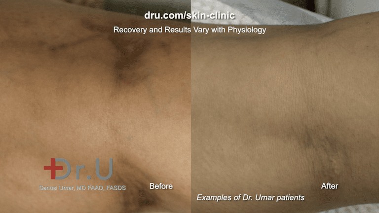 Close up view of Dr. U patient result after varicose vein removal. While spider veins on legs are more common, they can also appear on other parts of the body, such as the forearm.