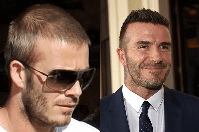 The photo on the left appears to show signs of thinning along the top of the head. A recent photo of Beckham (right) seems to show a straighter, more dense hairline, according to several sources. This has ignited speculation and searches around David Beckham hair transplant procedures.