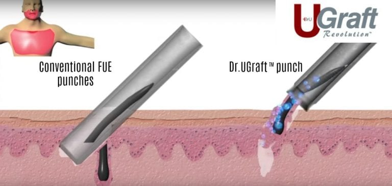 A Dr.UGraft ™ hair transplant with a natural hairline is able to use grafts from the leg, nape or other area of the body using specialized technology.