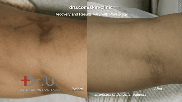 Before and after varicose veins in forearms treatment. This patient was treated by our team for spider veins, which may be associated with deep veins of the leg.*