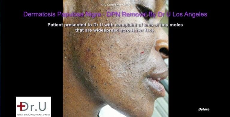 Dermatosa Papulosa Nigra pictures of Westchester patient show numerous lesions on her face.