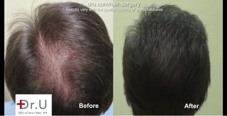 Results like these before and after photos have earned Dr.U many positive natural hair transplant reviews.