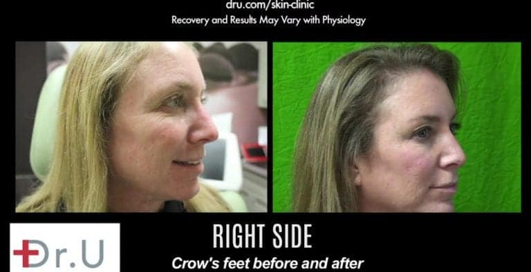 Right side of treatment results using Botox for crows feet around the eyes.