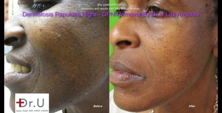 Left side comparison photos shows a major clearance of dark skin tags on the face.