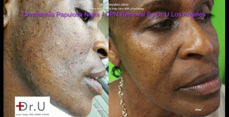 Dermatosa Papulosa Nigra pictures show smoother skin following Dr.U's treatment.