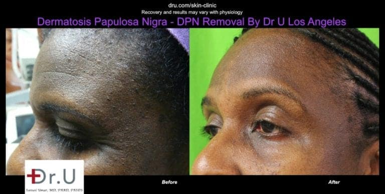 Dermatosa Papulosa Nigra pictures show a smoother looking forehead after Dr.U's electrocautery procedure.