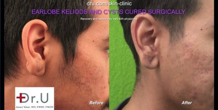 Long Beach, Los Angeles patient before and after his keloid cyst removal procedure performed by Dr. U.