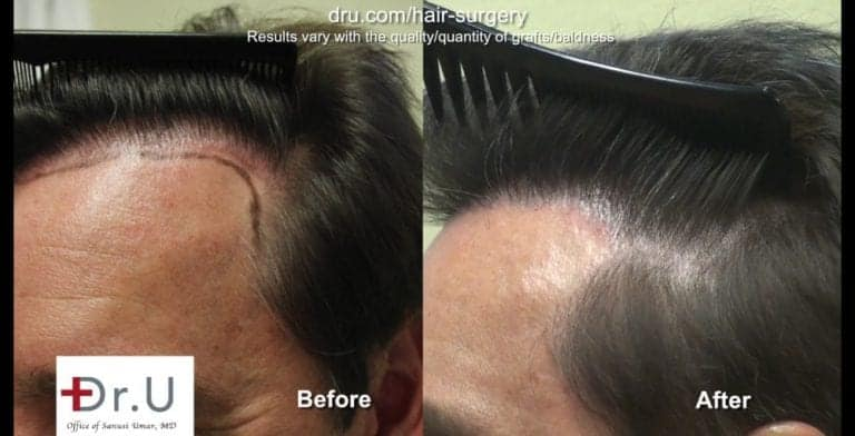 A Dr.UGraft™ undetectable hairline transplant focuses on intricate details for the temple region.