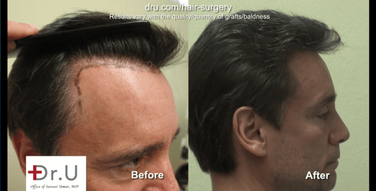 A hair transplant with a natural hairline must focus on the transition of the temples.