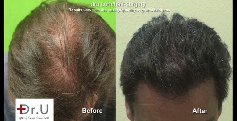 Does a hair transplant look natural? Dr.U's results show that the answer to this question is a resounding yes.