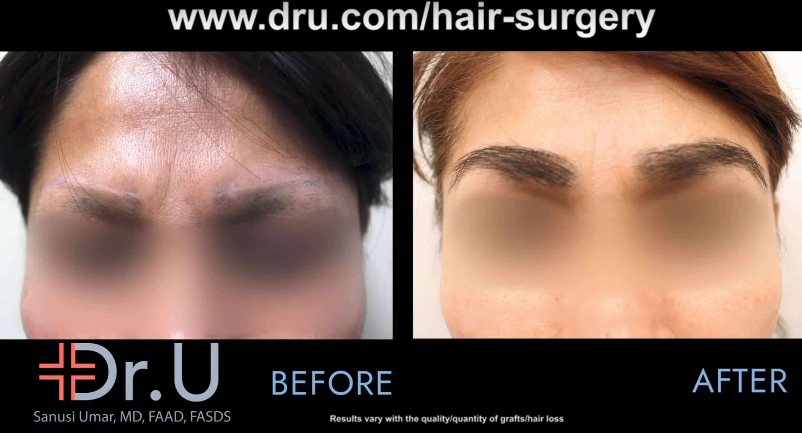 A Los Angeles patient before and after her eyebrow repair that corrected eyebrow discoloration and scarring.