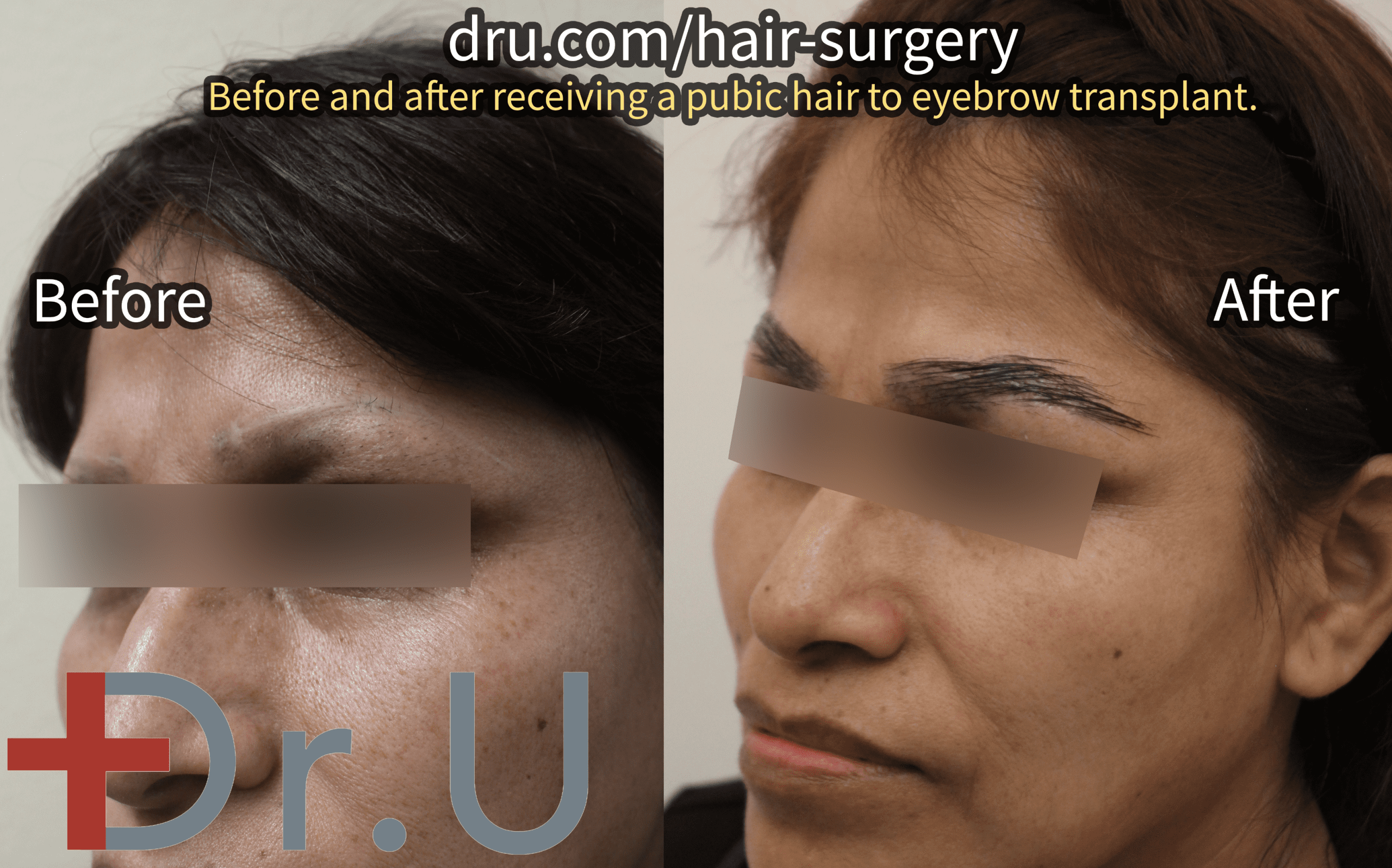 A Dr.UGraft™ eyebrow repair, before and after.*