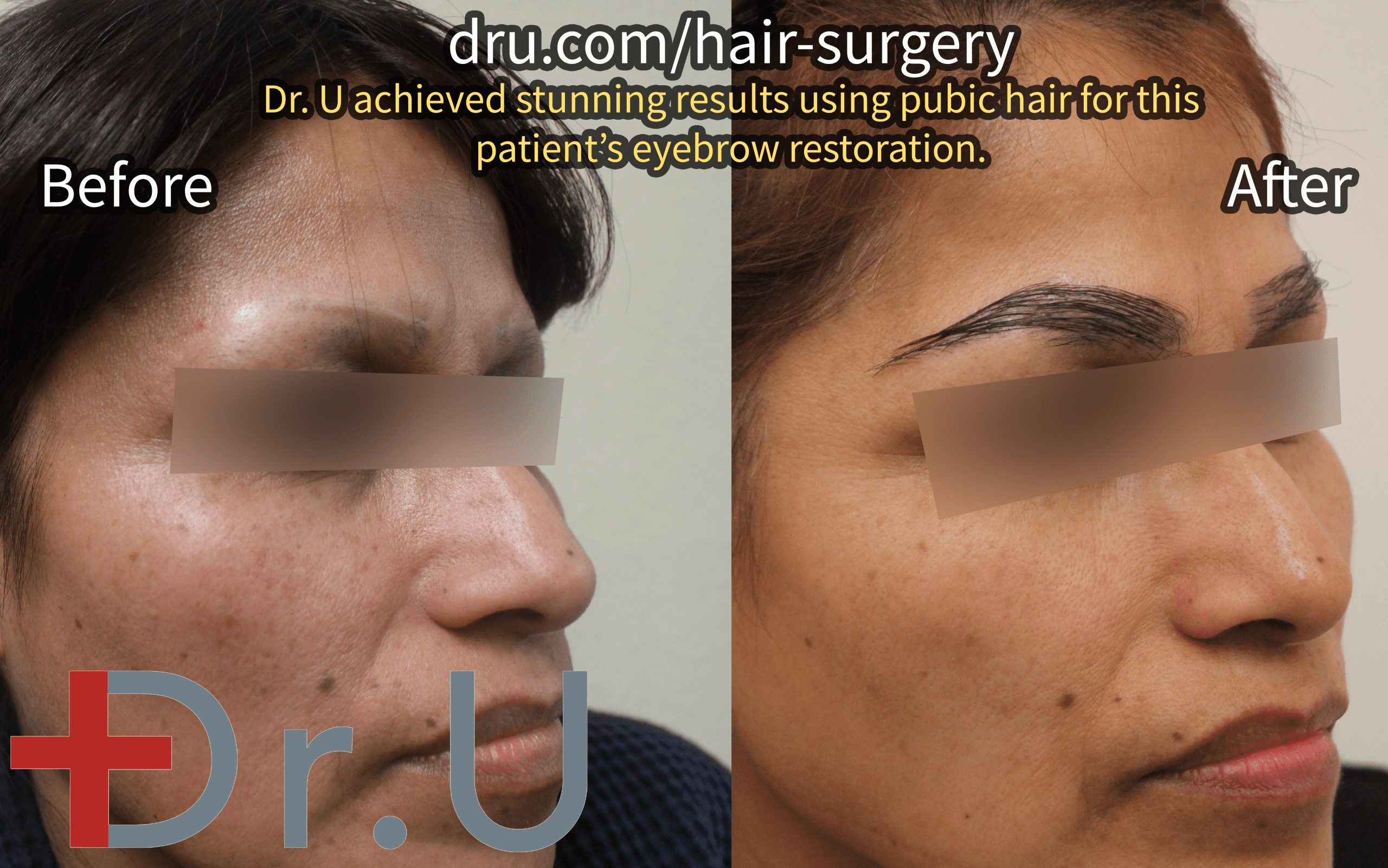 The patient's eyebrow scar repair before and after photos.*
