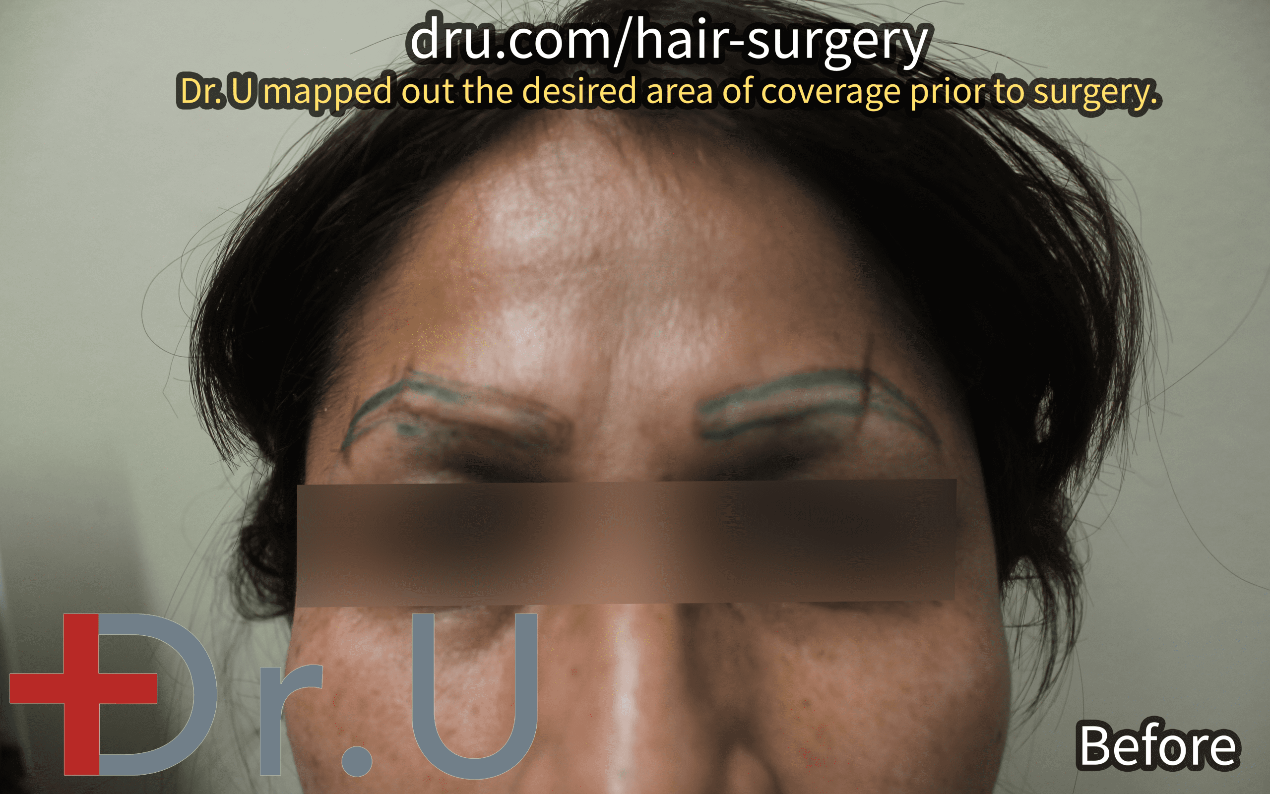 Dr. U mapped out the shape of the patient's eyebrows as they grew prior to her laser tattoo removal.