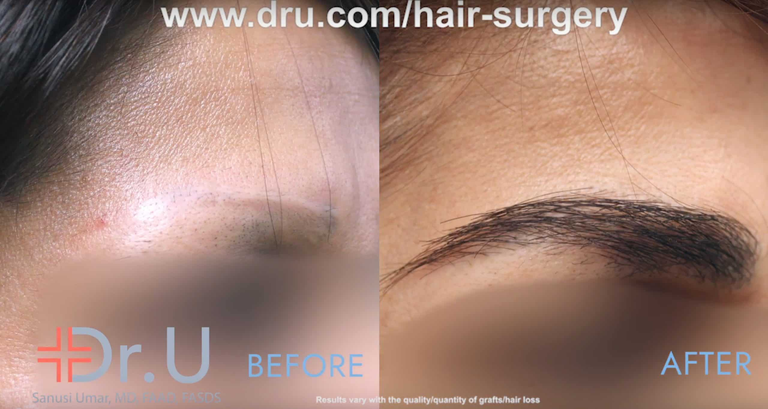 Though pubic hair may be an unusual choice for an FUE donor area in an eyebrow repair the patient's results have a real eyebrow texture with a natural look.