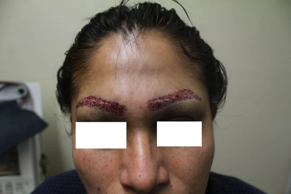 Patient undergoing UGraft eyebrow repair, shown soon after implantation of pubic derived hair grafts