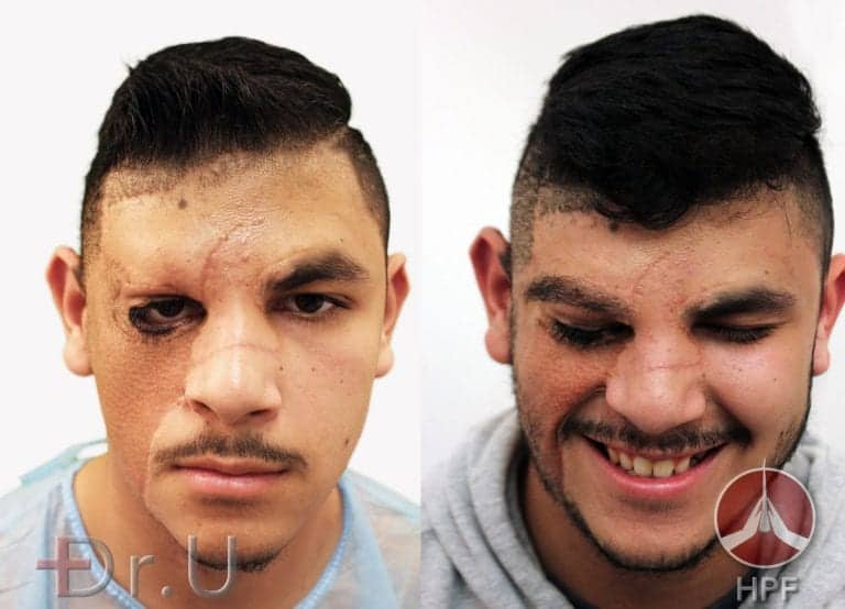 Los Angeles eyebrow and beard hair restoration - before and after photos showing the results of nape and leg hair transplant