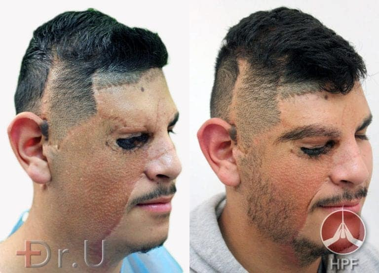 Before and after photos of Dr.U's sideburn hair transplant on right side of patient's face