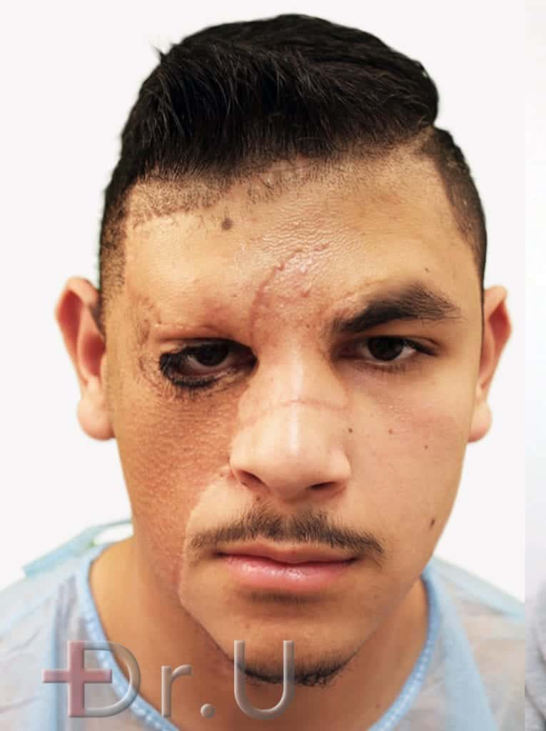 Patient shown with missing left eyebrow due to the placement of a skin graft on his forehead