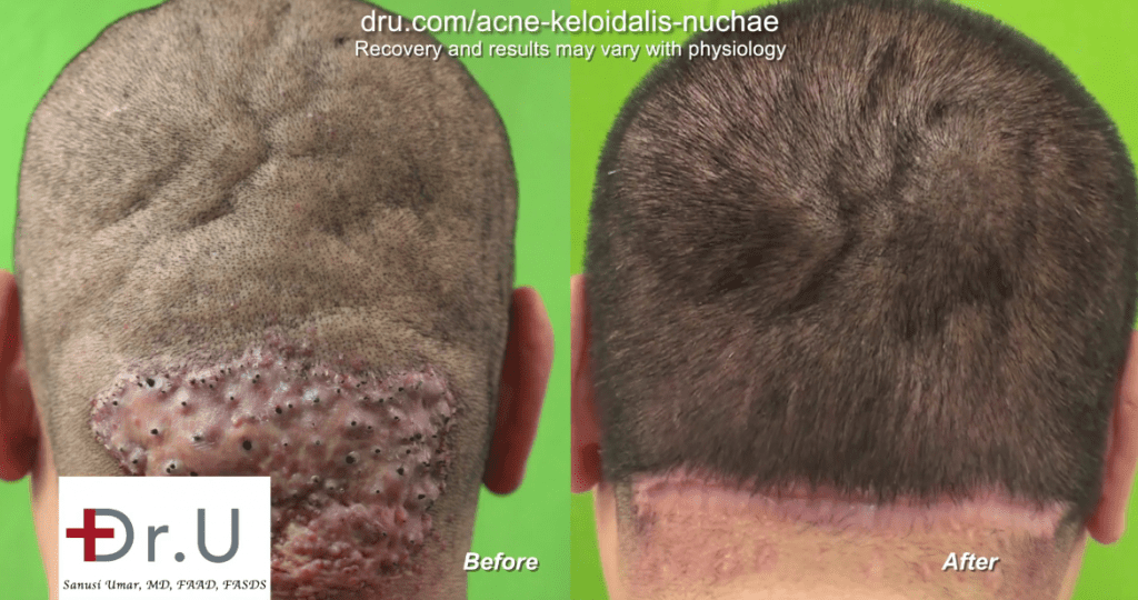 Removing large Acne Keloidalis Nuchae bumps can be achieved through Dr.U's bat excision methods along with tension sutures