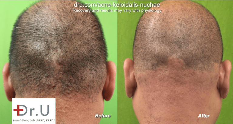 Dr.U's laser approach to treating Acne Keloidalis Nuchae involves the targeting of all the hair follicles within a defined treatment zone.