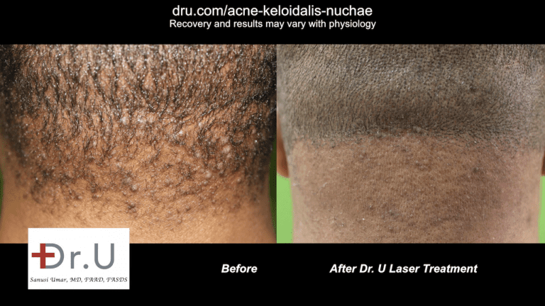 patient before and after laser treatment for early stage Acne Keloidalis Nuchae