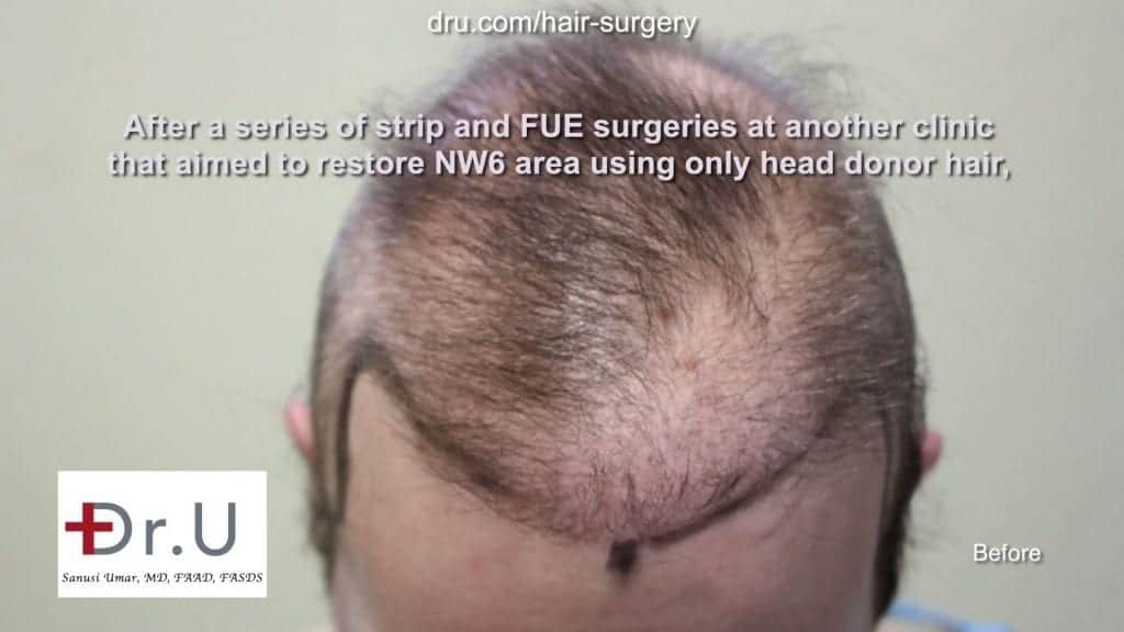 Repairing donor hair depleted patient using DrUGraft: patient prior to body hair for restoring donor depleted bald patient