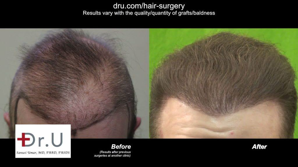 Repairing donor hair depleted patient using DrGraft Los Angeles: Before and After treatment with the Dr.UGraft